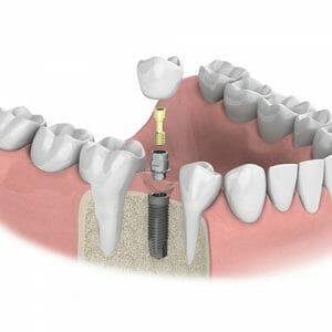 Einzelzahn Implantat