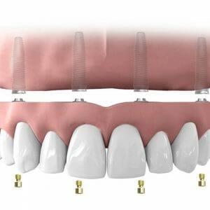 Oberkieferversorgung auf 4 Implantaten